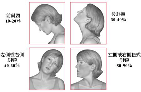 常見痙攣性斜頸類型