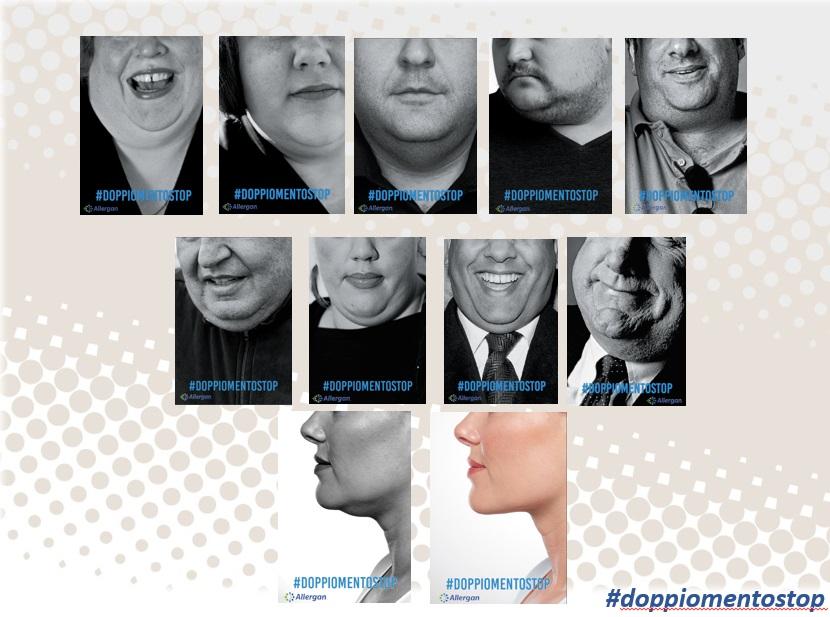 Allergan lancia la campagna di sensibilizzazione #doppiomentostop